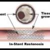 Cardiac stent Part 2
