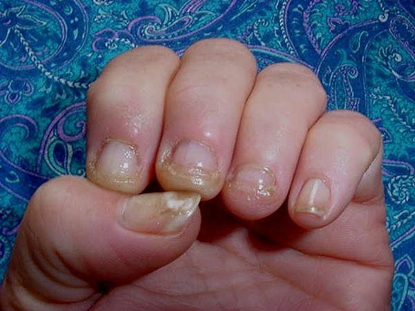 Acrylic Nail Fungus Part 1