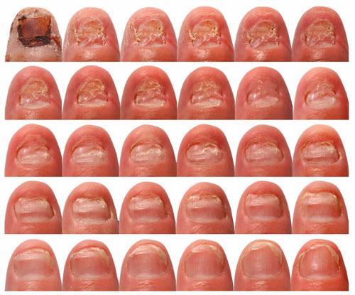 Delighted Best Tools For Nail Art Tall Nails Art For Valentine Regular Nail Art Trends Summer 2014 Chameleon Nail Polish Old Vicks Vapour Rub Nail Fungus GreenNail Salon Polish Rack Acrylic Nail Fungus Part 1