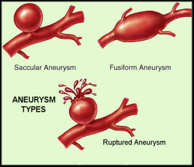 Aneurysms are swellings which  Saccular Aneurysm