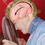 Motor vehicle accidents can cause brain injury