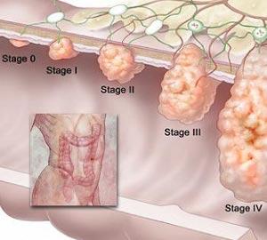 Abdominal cancer