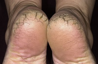 thick dry skin
