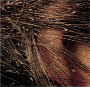 Pediculosis/Phthriasis - Lice Infestation of the human body