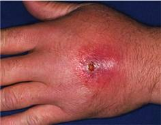 Cellulitis Caused By Dog Bite