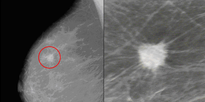 What Does Abnormal Mammogram Look Like