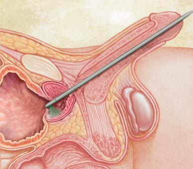 sperma-cherez-trubku