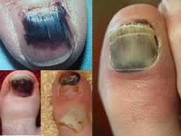 Discoloured toe nails