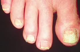 Thyroid Disorders Brittle Toe Nails